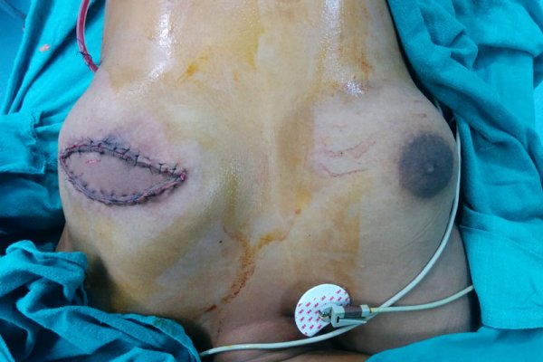 breast surgery in Bhubaneswar