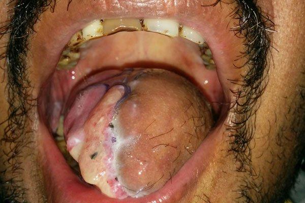 plastic surgery in Bhubaneswar