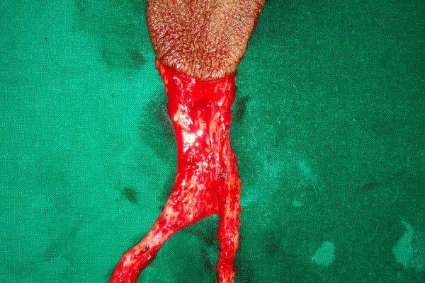 Best plastic surgery in Bhubaneswar