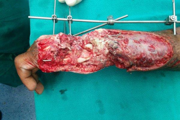 plastic burn surgery in Bhubaneswar