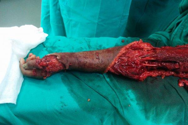 burn surgery in Bhubaneswar