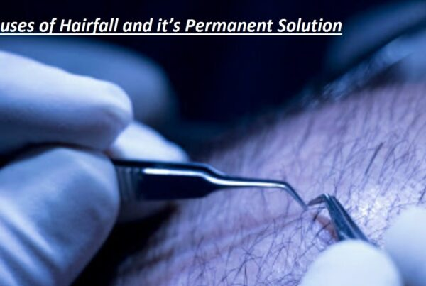 Causes-of-Hairfall-and-its-Permanent-Solution