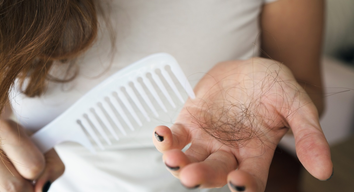 Top-3-Things-Women-Can-Do-To-Prevent-Hair-Loss-Problems